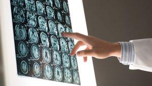 Создана программа с высокой долей вероятности прогнозирующая болезнь Паркинсона