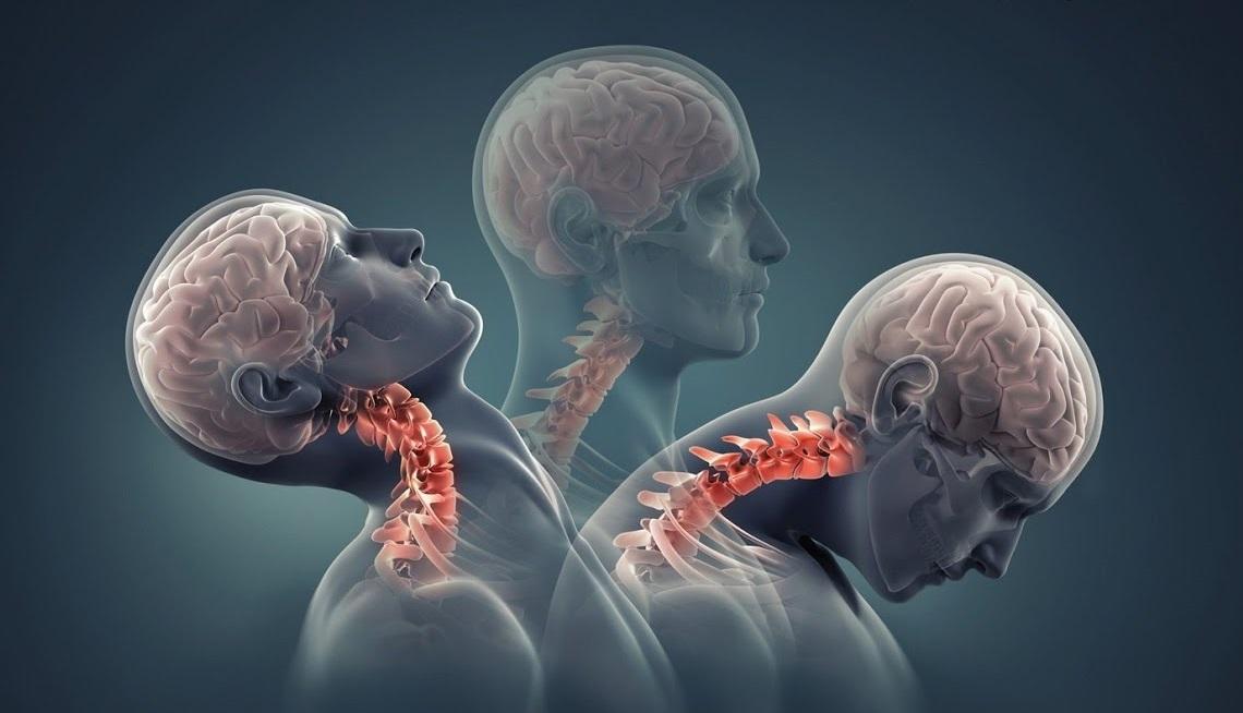 Китайской пациентке вживили напечатанные на 3D-принтере позвонки