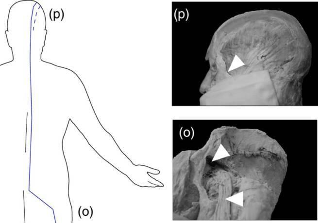 Найден древнейший анатомический атлас